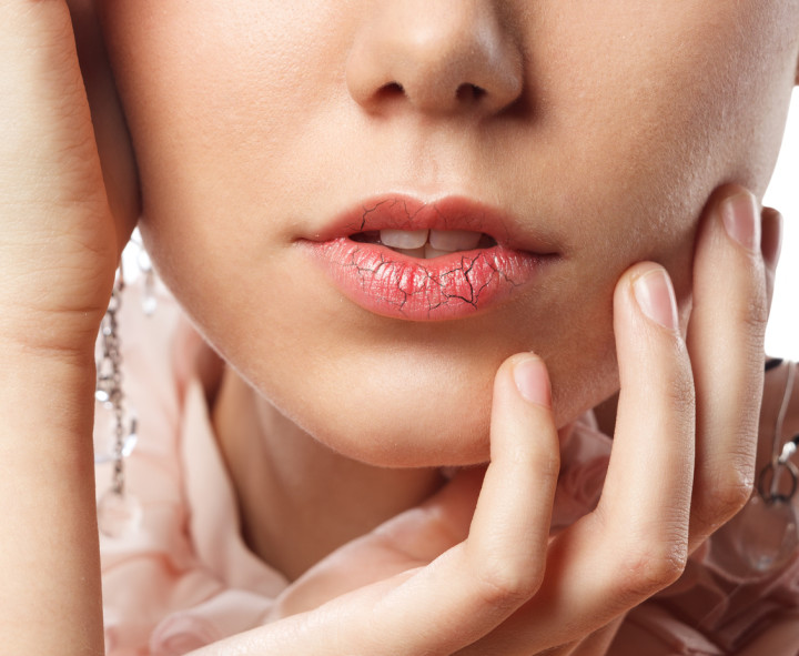 Young woman has chapped lips