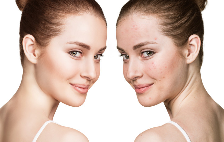 Girl with acne before and after treatment