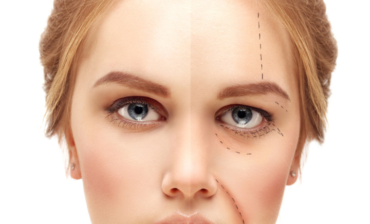 Aging. Mature woman-young woman.Marking the face.Perforation lines on females face, plastic surgery concept.