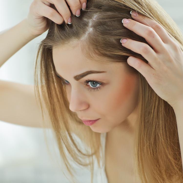 真っ白な頭皮は健康だという証拠?頭皮と髪の健康を助けてくれる食材って?