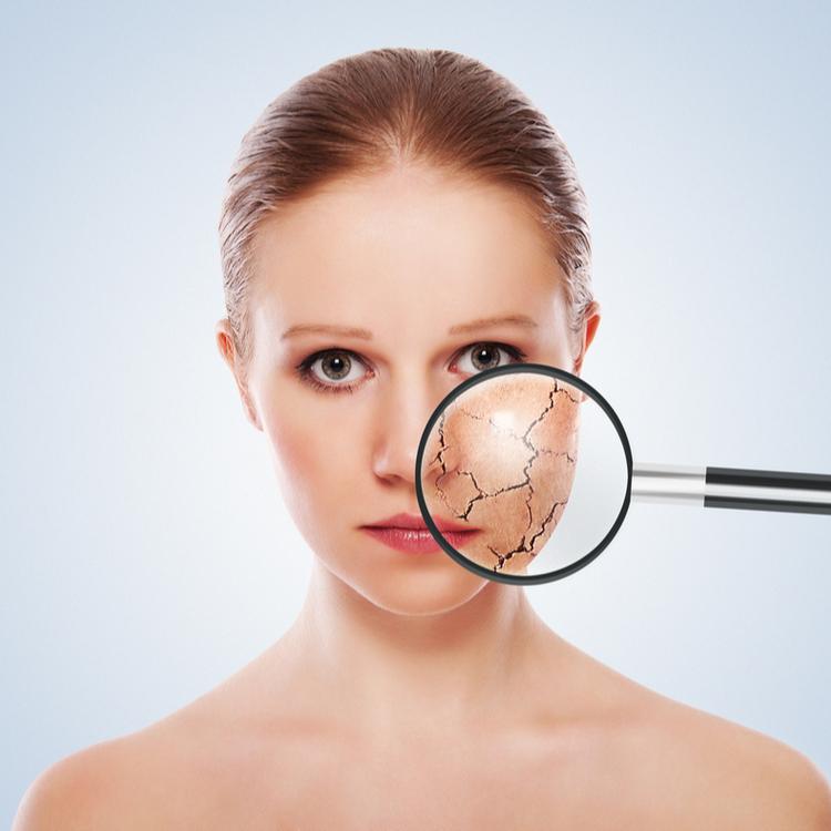 なぜ肌は乾燥するの?乾燥肌の解決は保湿とプラスαが必要!