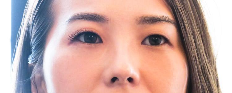 目元の印象の違いは一目瞭然
