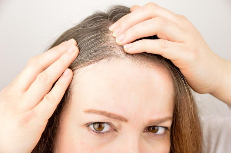 白髪を予防していくために