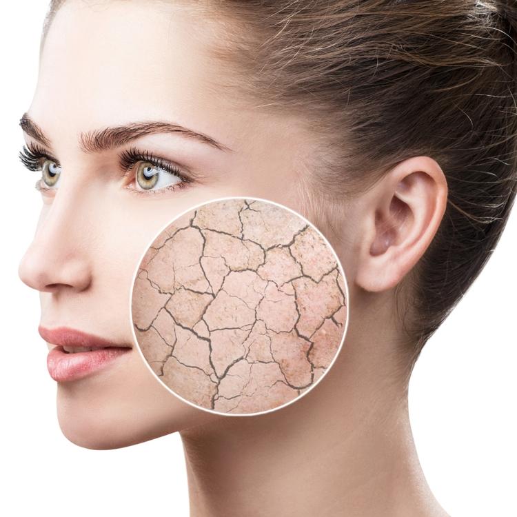 ゆらぎ肌とは?健康的な肌を維持するための乾燥対策