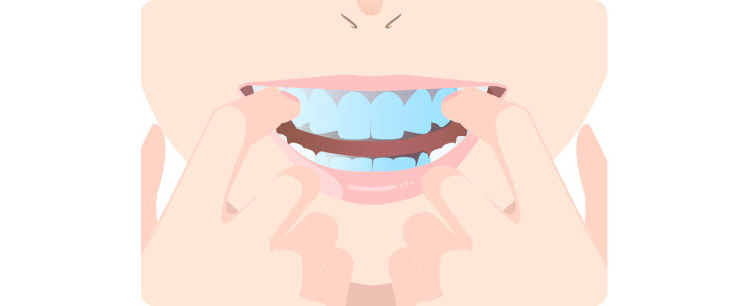 歯にしっかり密着させる