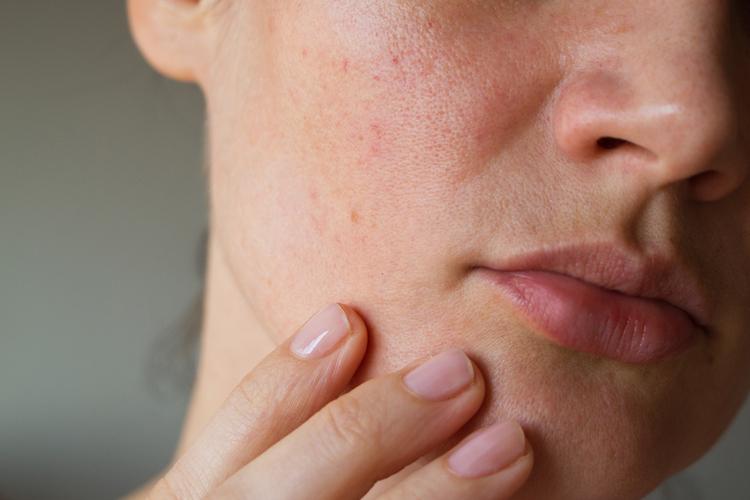 乾燥肌はお肌のバリア機能が弱まります