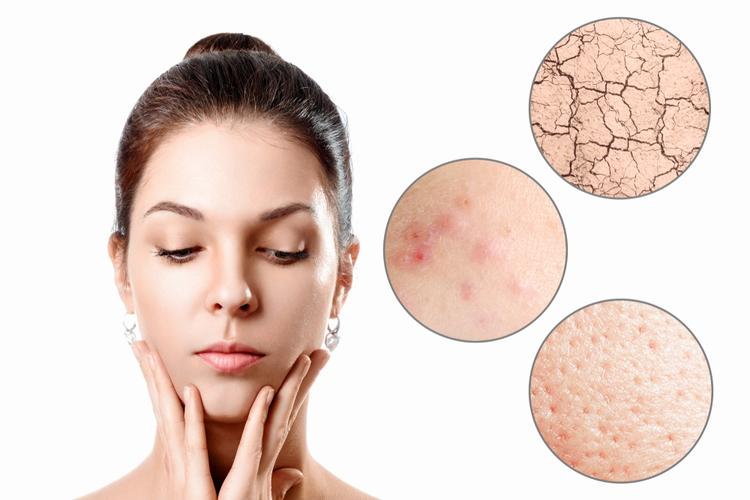 肌の乾燥とニキビの関係